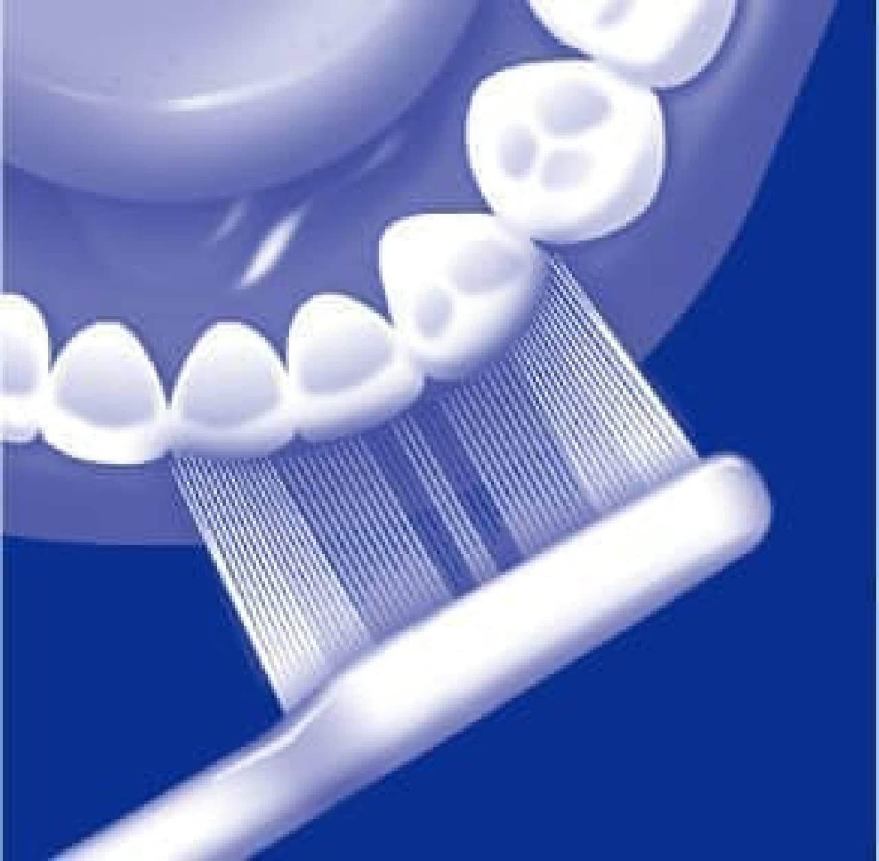 歯列へのフィット感を高めたアーチ形状