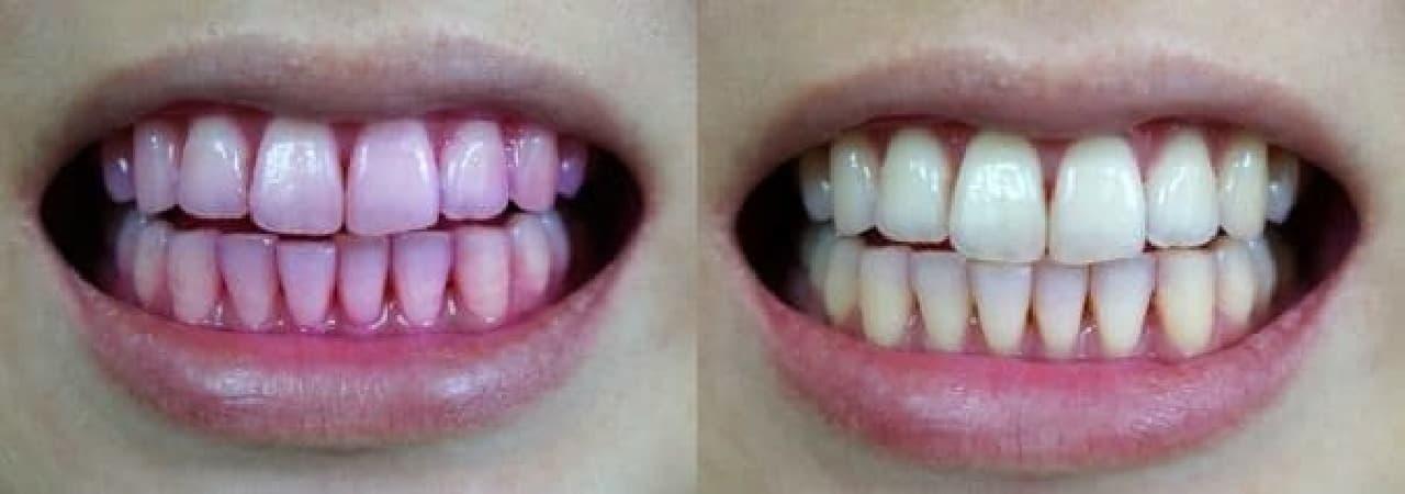 歯磨き前(左)と歯磨き後(右)。あくまで参考まで